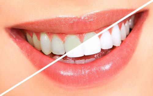 Teeth Whitening Home Kits Round Rock Dentist Nuyu Dental